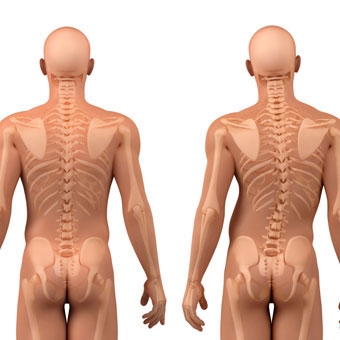 scoliosis posterior crooked and straight